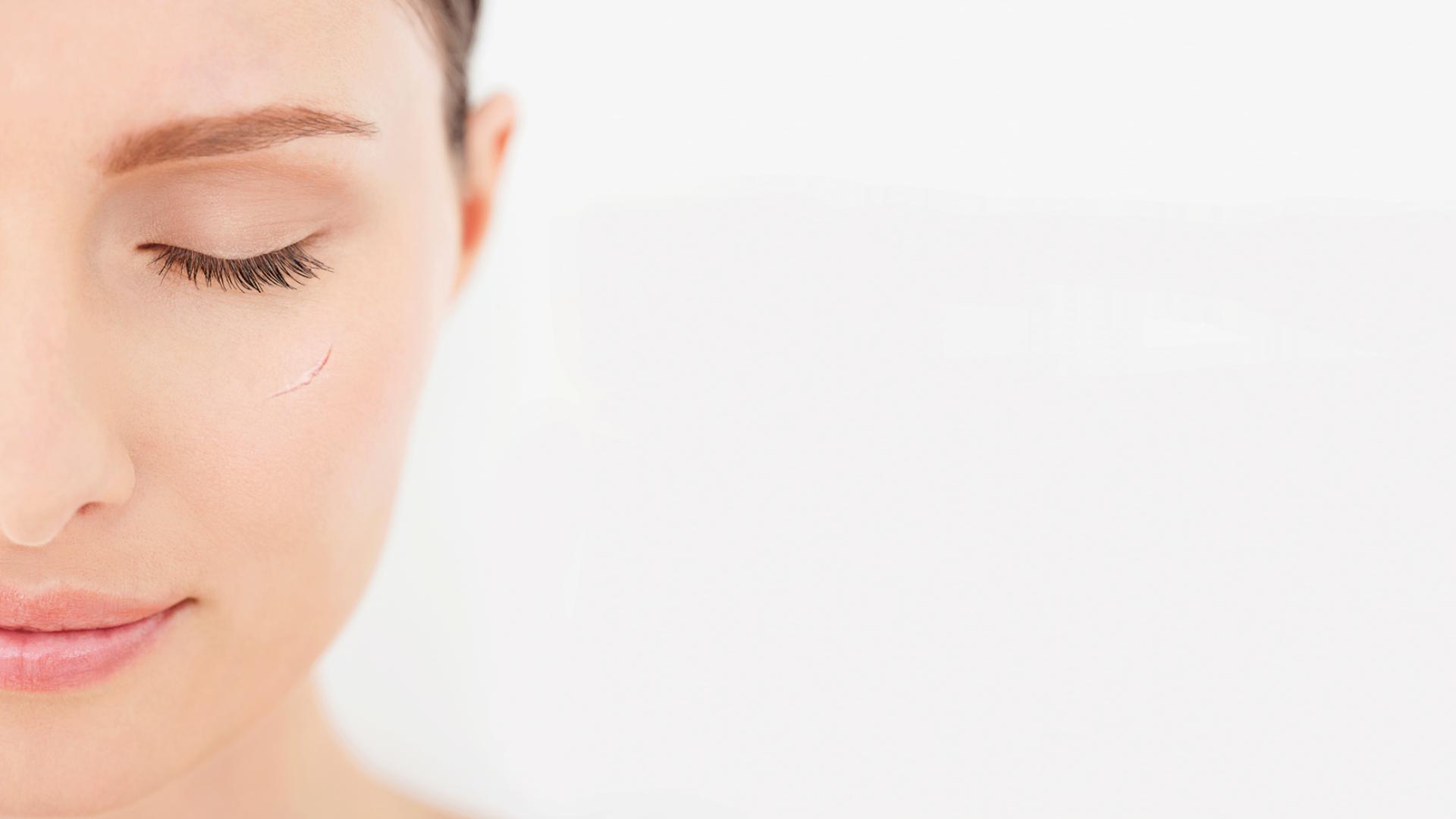 Prevenire le cicatrici kelo-cote